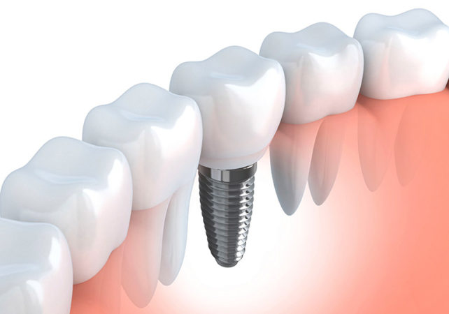 How successful are dental implants?