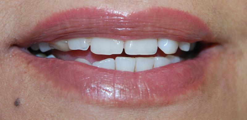 Temporary teeth.