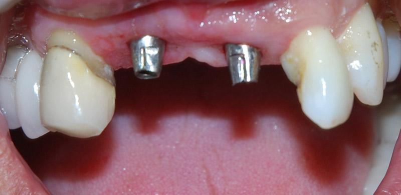 Implant posts (abutments).