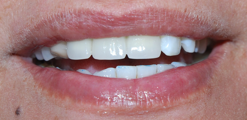 Permanent fixed teeth.