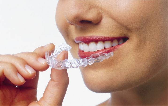 Invisalign facts, pros and cons