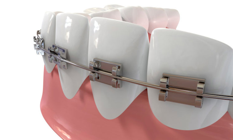 What do you need to know about braces?