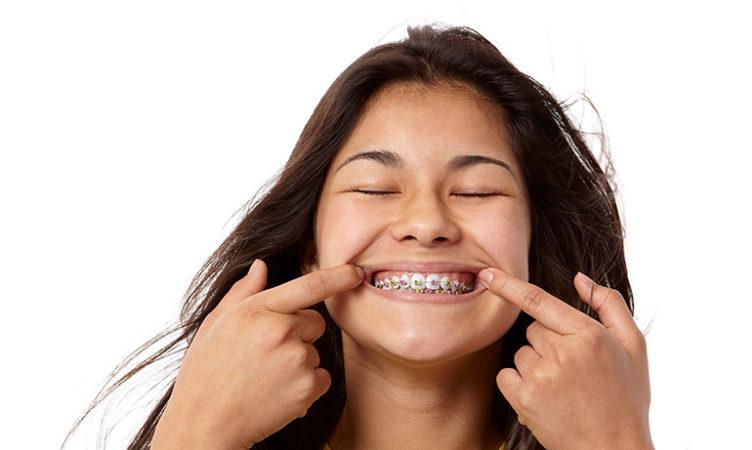 When should my child have braces?
